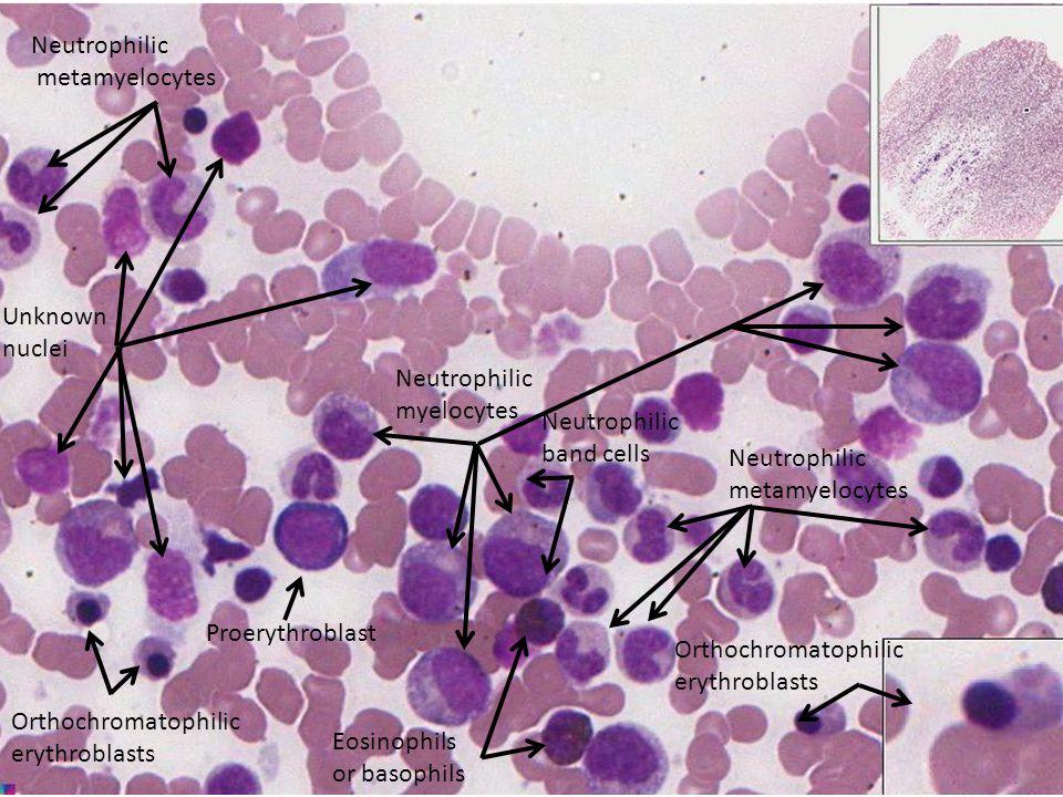 Neutrophilic metamyelocytes Proerythroblast Neutrophilic myelocytes Neutrophilic metamyelocytes Orthochromatophilic erythroblasts Orthochromatophilic