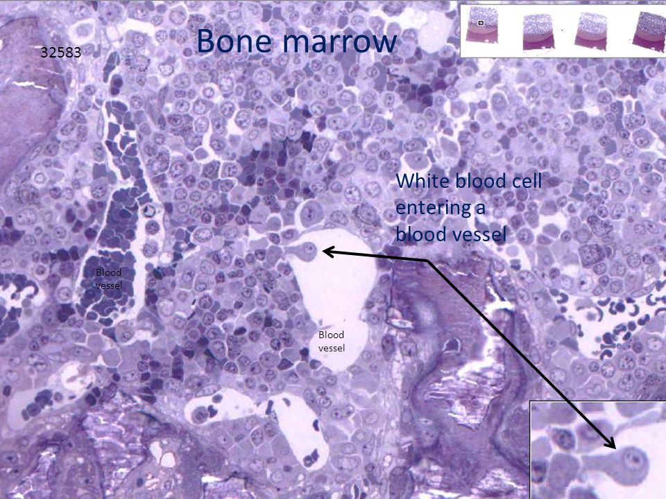 32583 White blood cell entering a blood vessel Bone marrow Blood vessel Blood vessel
