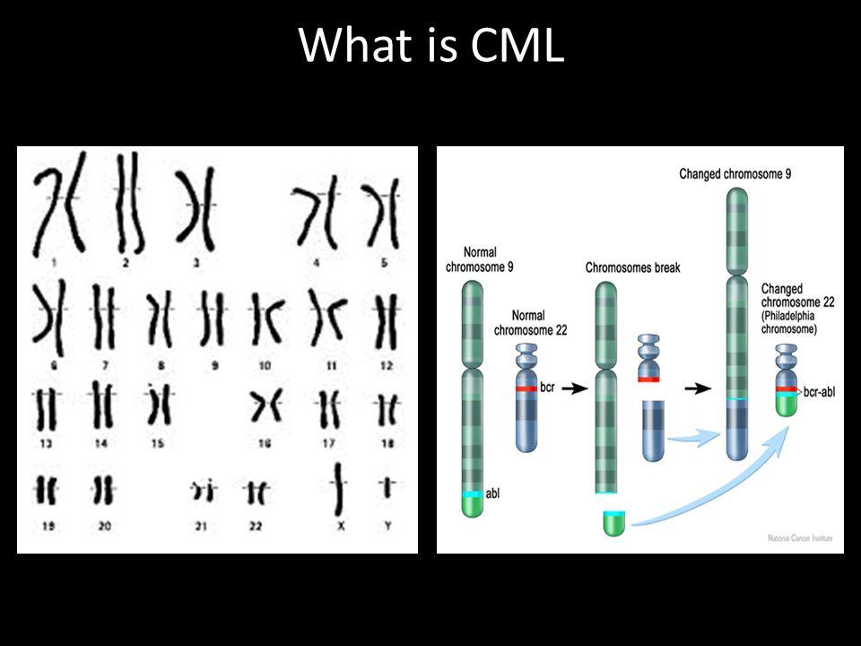 What is CML Wang et al. Genes Chromosomes Cancer. 2001;32:97