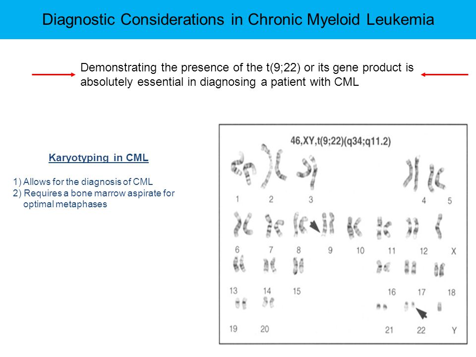 Diagnostic Considerations in Chronic Myeloid Leukemia Karyotyping in CML 1) Allows for the diagnosis of CML 2) Requires a bone marrow aspirate for opt