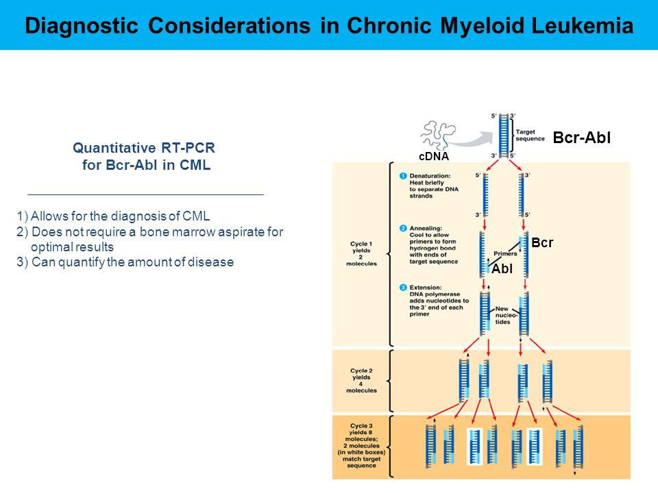 Diagnostic Considerations in Chronic Myeloid Leukemia Bcr-Abl Bcr Abl cDNA Quantitative RT-PCR for Bcr-Abl in CML 1) Allows for the diagnosis of CML 2