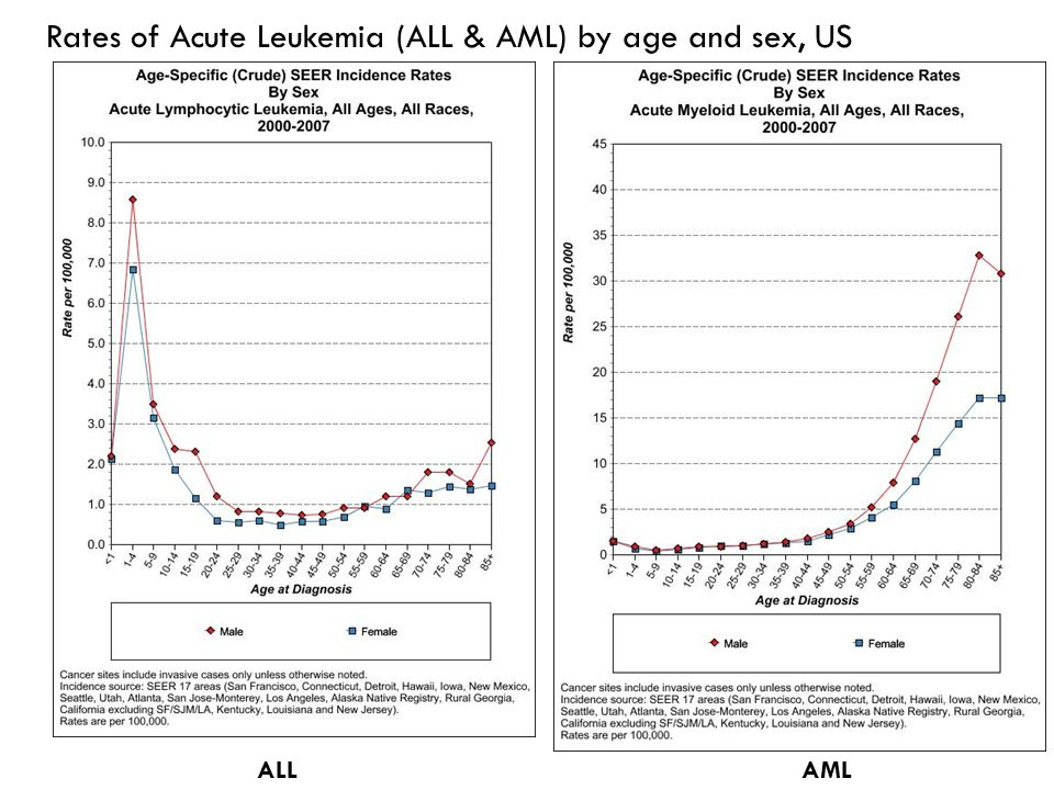 Rates of Acute Leukemia (ALL & AML) by age and sex, US ALLAML
