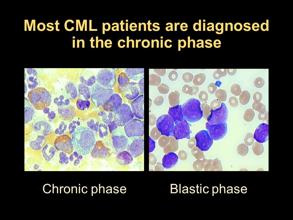 Most CML patients are diagnosed in the chronic phase Chronic phaseBlastic phase