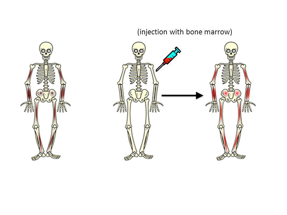 (injection with bone marrow)