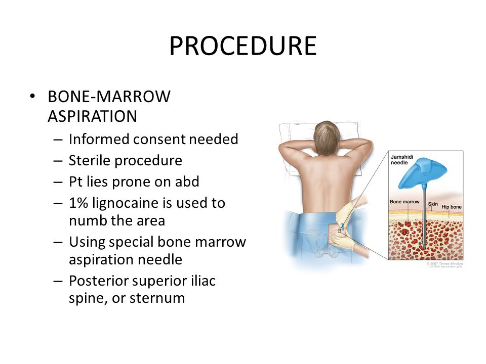 PROCEDURE BONE-MARROW ASPIRATION – Informed consent needed – Sterile procedure – Pt lies prone on abd – 1% lignocaine is used to numb the area – Using
