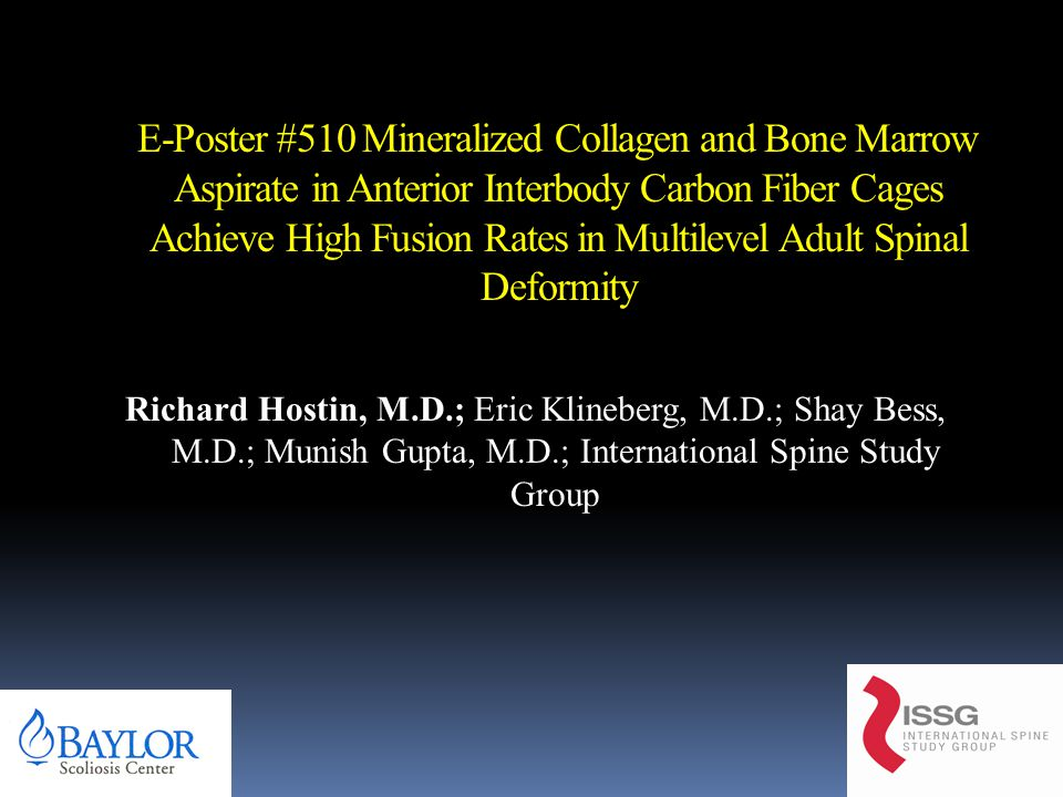 E-Poster #510 Mineralized Collagen and Bone Marrow Aspirate in Anterior Interbody Carbon Fiber Cages Achieve High Fusion Rates in Multilevel Adult Spinal Deformity Richard Hostin, M.D.; Eric Klineberg, M.D.; Shay Bess, M.D.; Munish Gupta, M.D.; International Spine Study Group