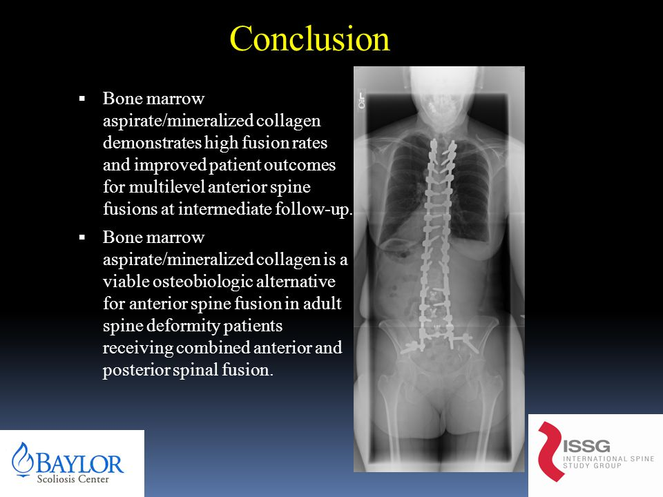 Conclusion  Bone marrow aspirate/mineralized collagen demonstrates high fusion rates and improved patient outcomes for multilevel anterior spine fusions at intermediate follow-up.