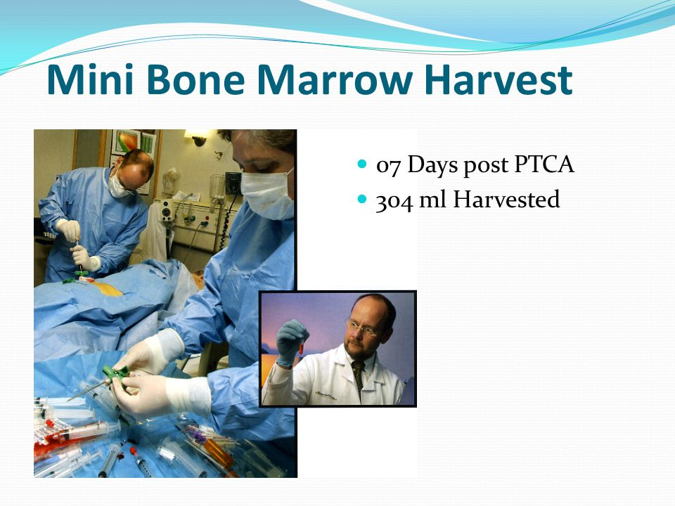 Mini Bone Marrow Harvest 07 Days post PTCA 304 ml Harvested