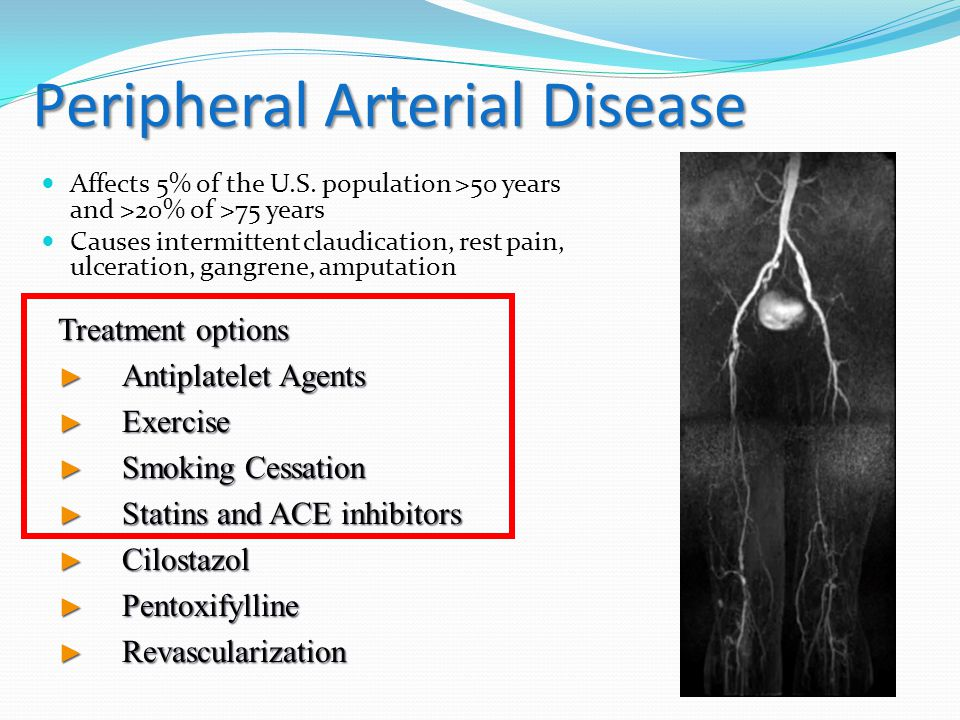 Peripheral Arterial Disease Affects 5% of the U.S.