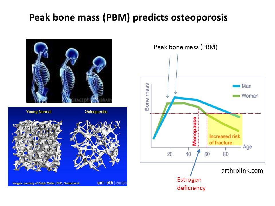 Peak bone mass (PBM) predicts osteoporosis arthrolink.com Peak bone mass (PBM) Estrogen deficiency