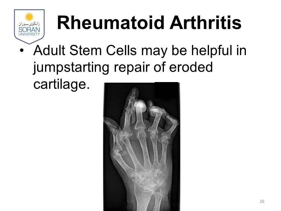 Rheumatoid Arthritis Adult Stem Cells may be helpful in jumpstarting repair of eroded cartilage. 26