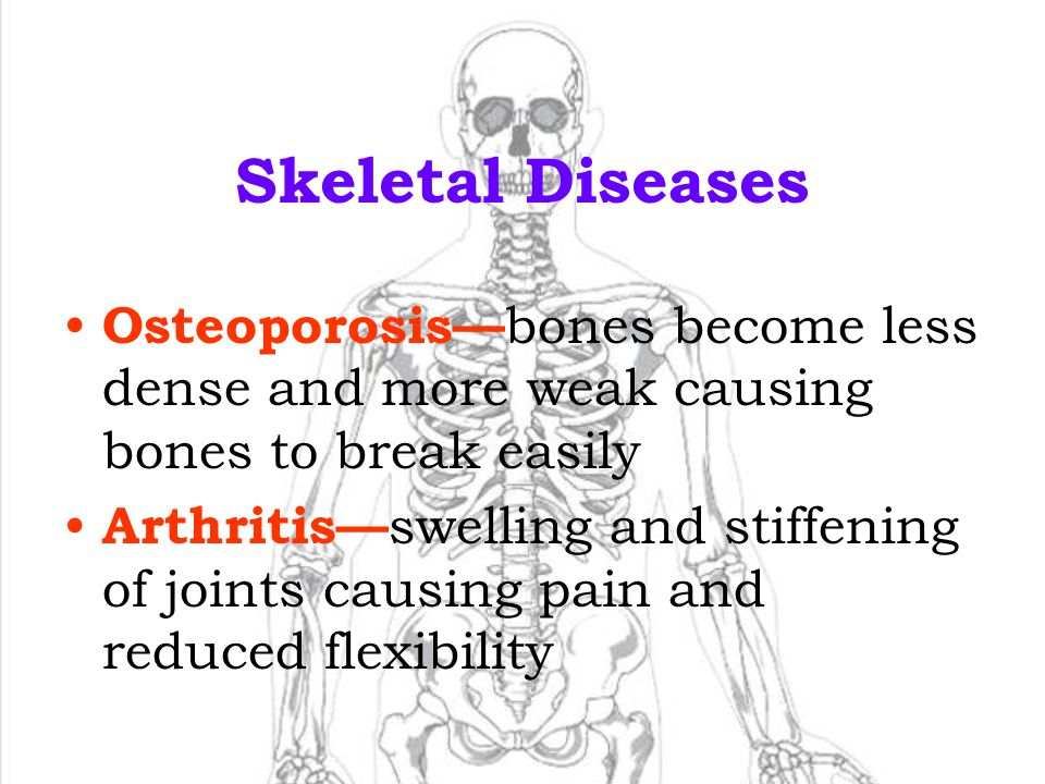22 Skeletal Injuries and Diseases Fracture —a break in a bone Dislocation —a bone forced out of location or place Sprain —abnormal stretching or tearing of a ligament (remember, ligaments hold muscles onto bones) Fracture Sprain