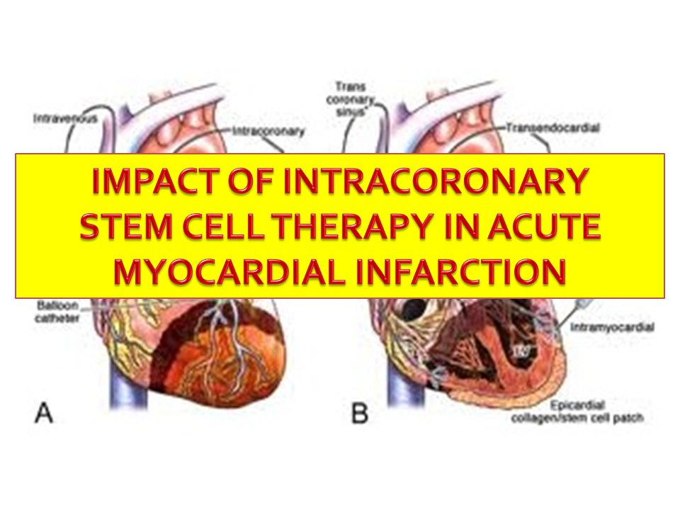 OUTCOME OF INTRACORONARY STEM CELL THERAPY IN ACUTE MYOCARDIAL INFARCTION: META-ANALYSIS OF RANDOMIZED CONTROLLED TRIALS Arvisminda Luz G.