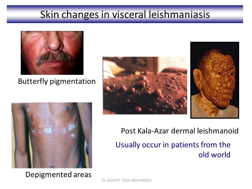 Skin changes in visceral leishmaniasis Depigmented areas Post Kala-Azar dermal leishmanoid Usually occur in patients from the old world Butterfly pigmentation Dr.