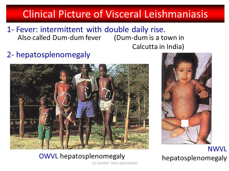 OWVL hepatosplenomegaly NWVL hepatosplenomegaly Clinical Picture of Visceral Leishmaniasis 1- Fever: intermittent with double daily rise.