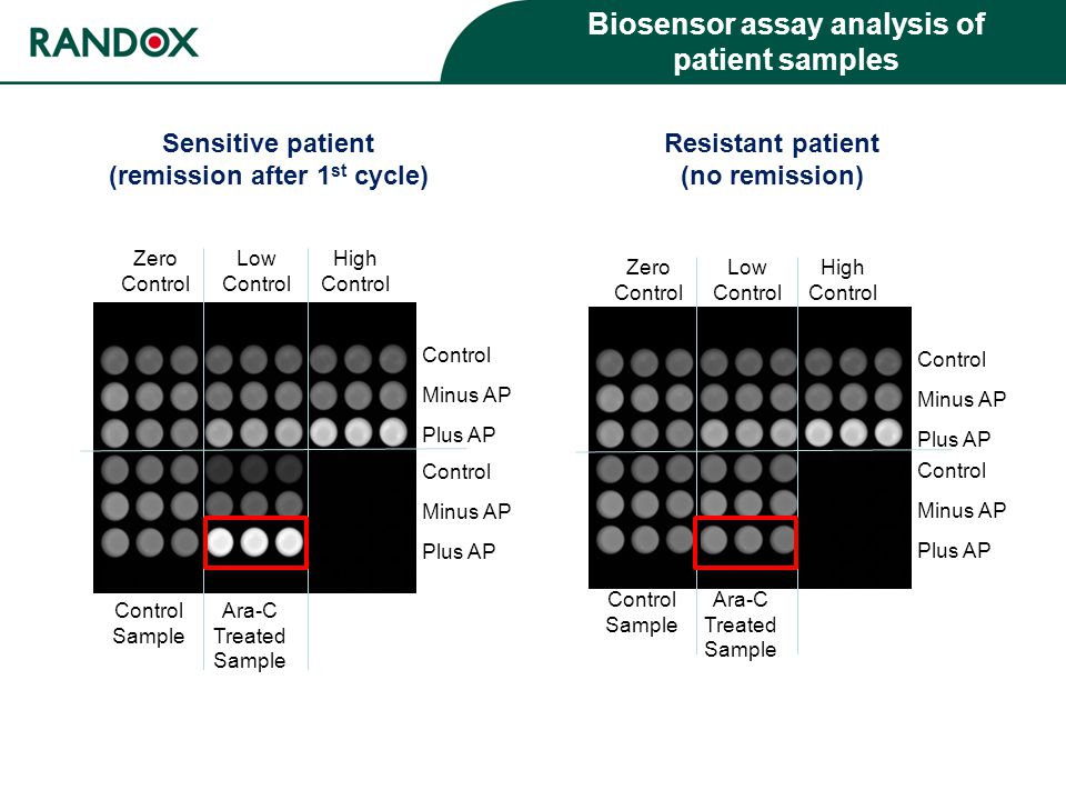 Control Minus AP Plus AP Control Minus AP Plus AP Zero Control Low Control High Control Control Sample Ara-C Treated Sample Biosensor assay analysis of patient samples Control Minus AP Plus AP Control Minus AP Plus AP Zero Control Low Control High Control Control Sample Ara-C Treated Sample Sensitive patient (remission after 1 st cycle) Resistant patient (no remission)