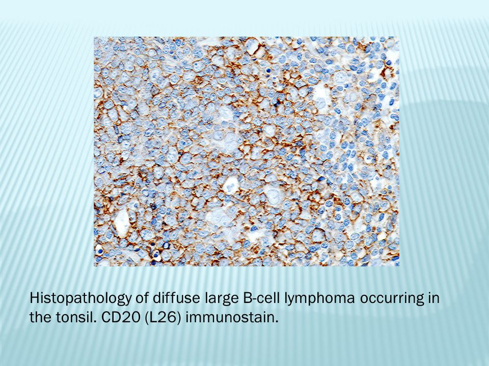 Histopathology of diffuse large B-cell lymphoma occurring in the tonsil. CD20 (L26) immunostain.