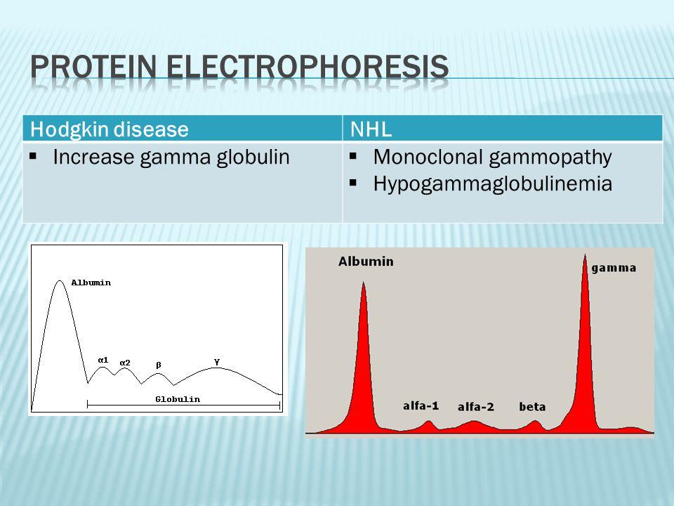 Hodgkin diseaseNHL  Increase gamma globulin  Monoclonal gammopathy  Hypogammaglobulinemia