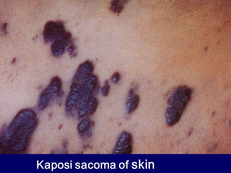 Kaposi sacoma of skin