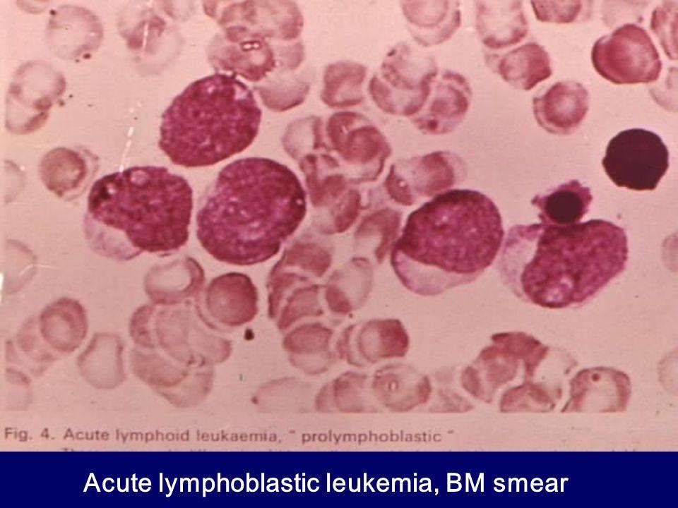 Acute lymphoblastic leukemia, BM smear