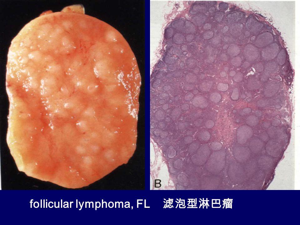 follicular lymphoma, FL 滤泡型淋巴瘤