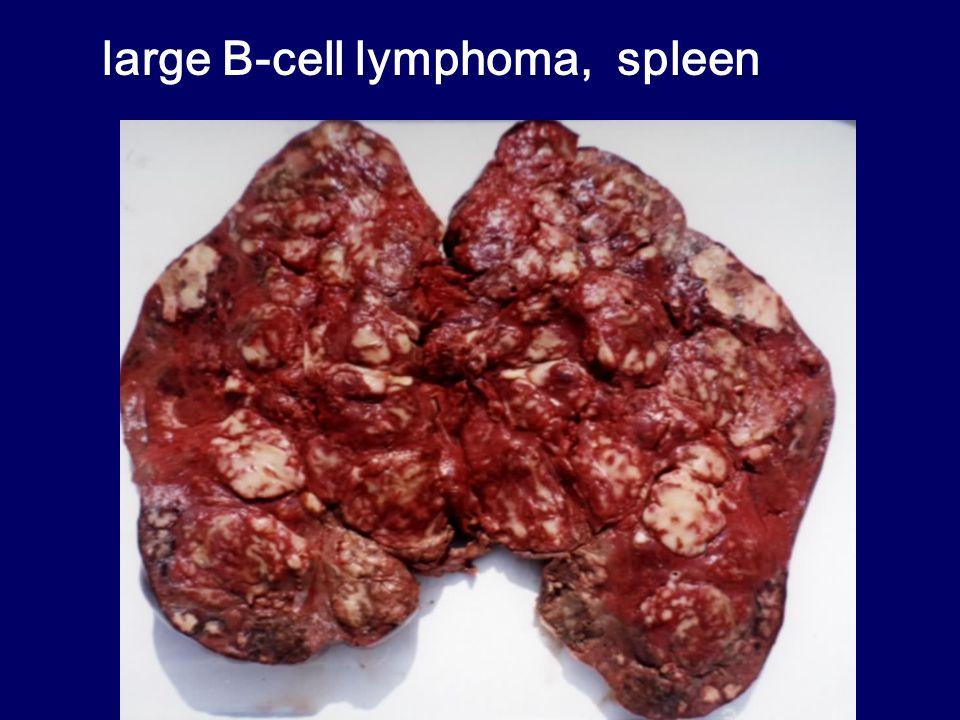 large B-cell lymphoma, spleen