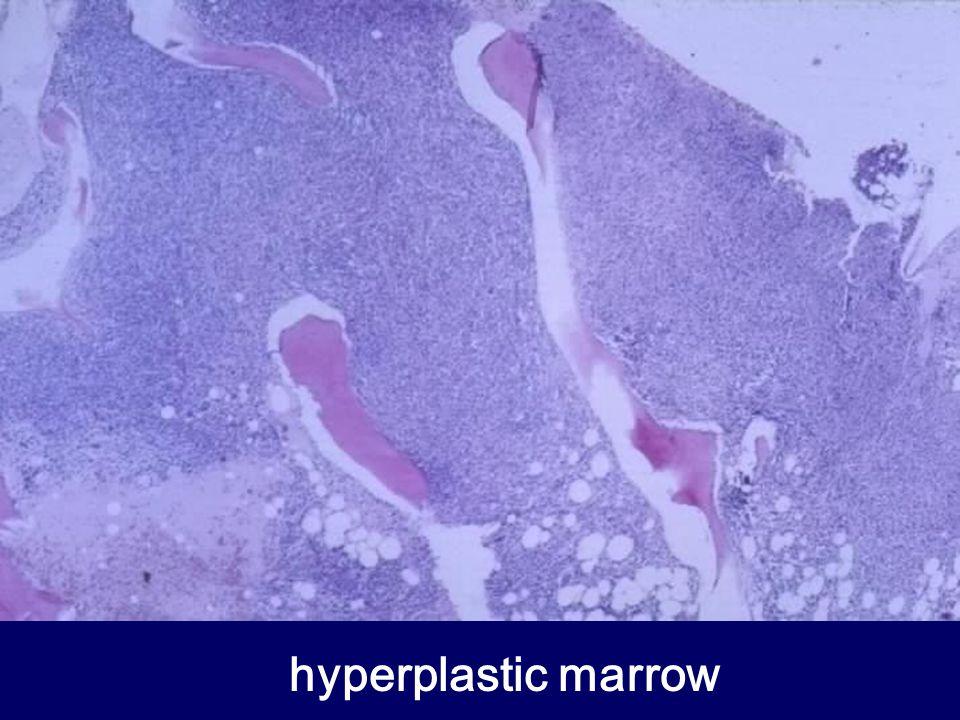 hyperplastic marrow