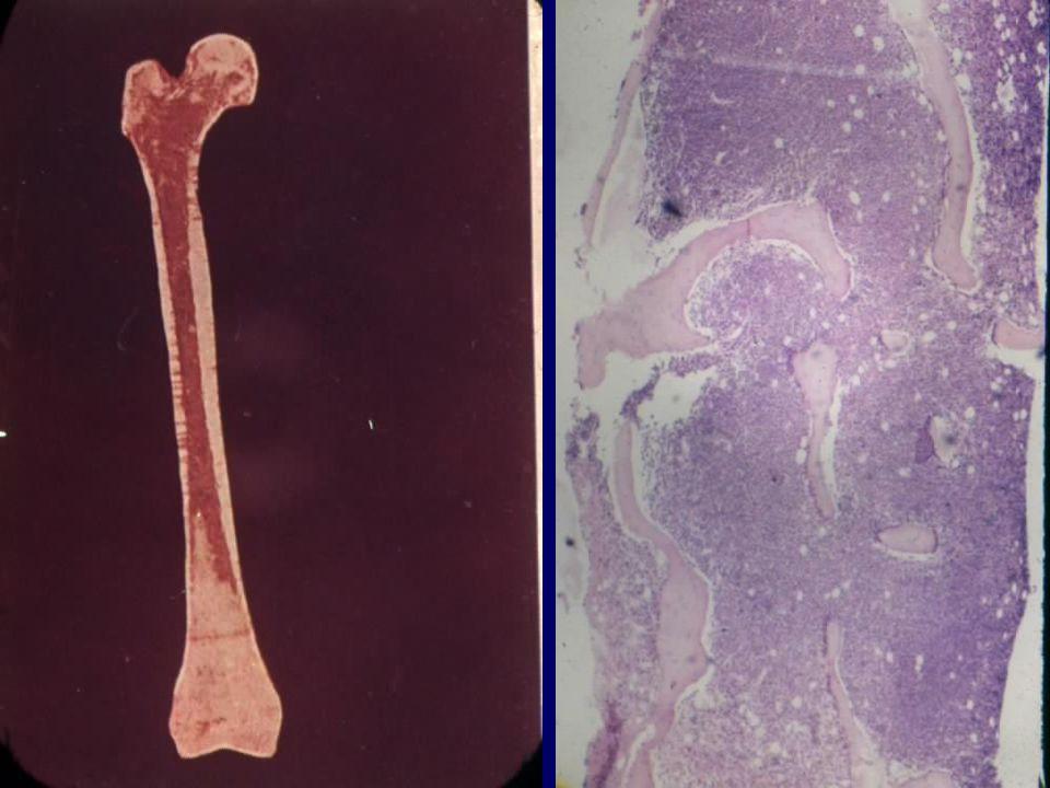 AML Hyperplasitc marrow
