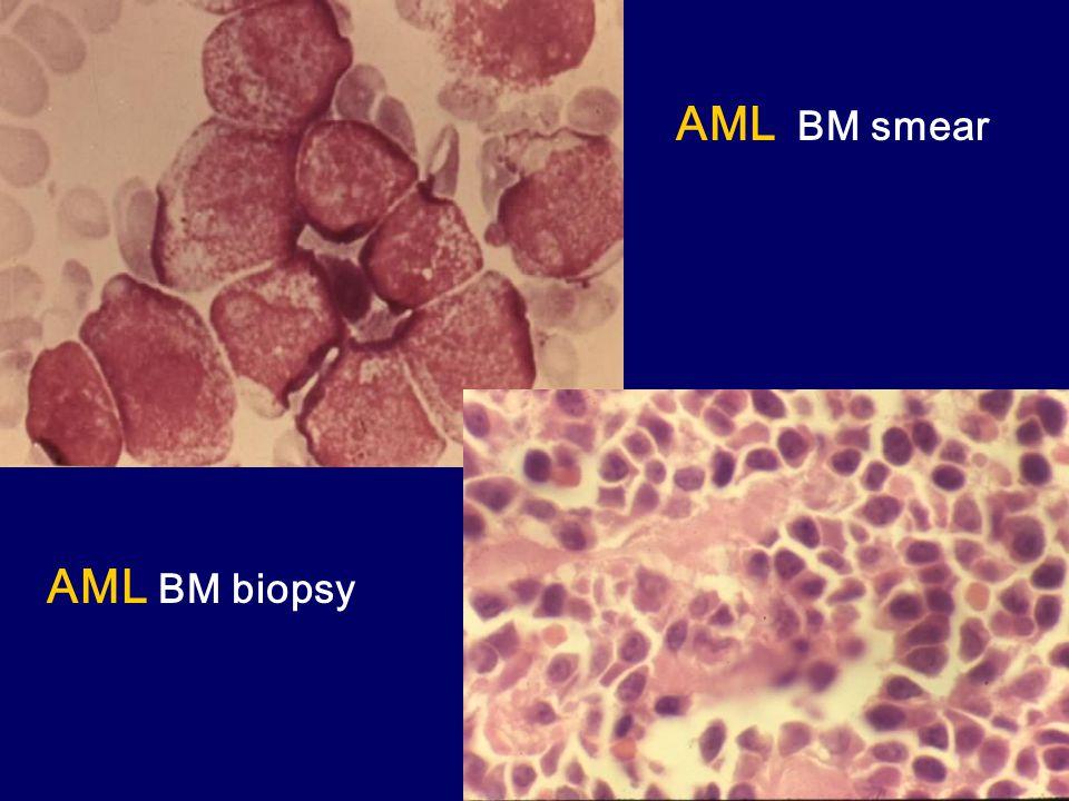 AML BM smear AML BM biopsy