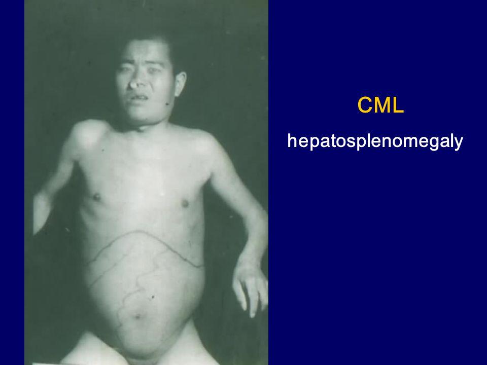 CML hepatosplenomegaly