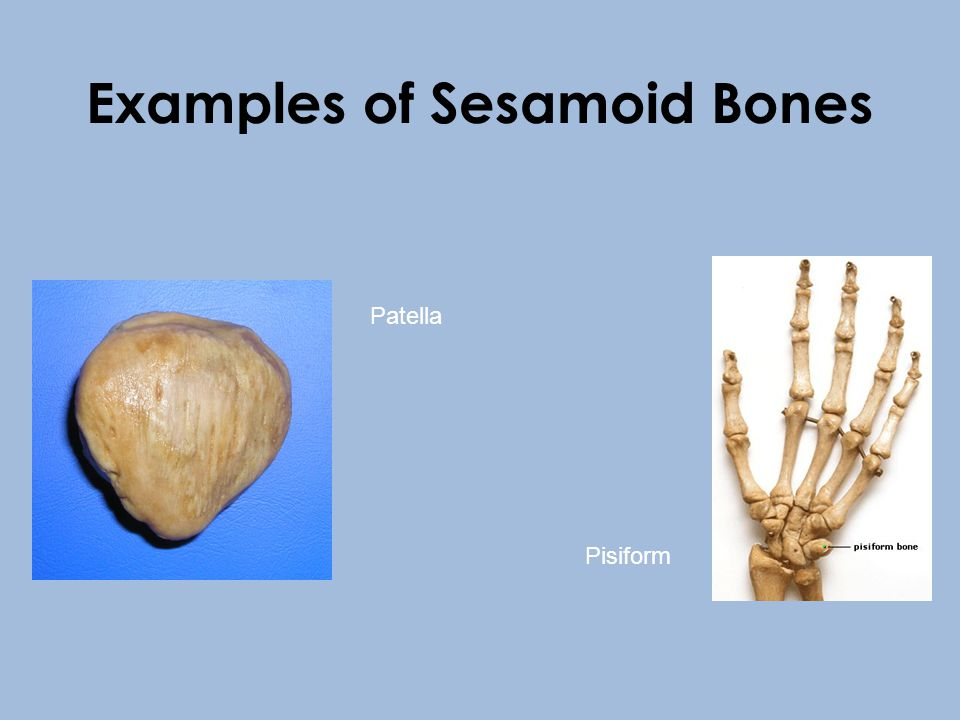 Sesamoid Bones *usually short or irregular bones *usually present in a tendon where it passes over a joint which serves to protect the tendon *modify pressure, to diminish friction, and occasionally to alter the direction of a muscle pull.