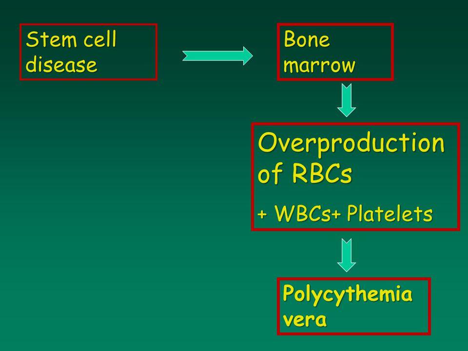 Bone marrow Overproduction of RBCs + WBCs+ Platelets Stem cell disease Polycythemia vera
