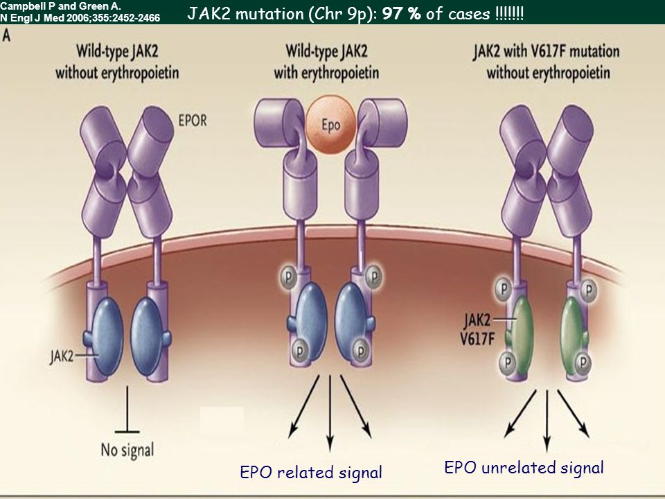 EPO related signal EPO unrelated signal Campbell P and Green A. N Engl J Med 2006;355:2452-2466 JAK2 mutation (Chr 9p): 97 % of cases !!!!!!!