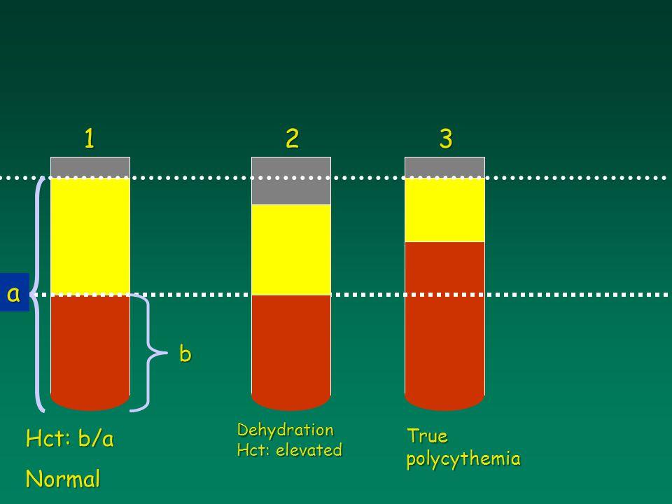 Hct: b/a Normal Dehydration Hct: elevated 123 True polycythemia a b