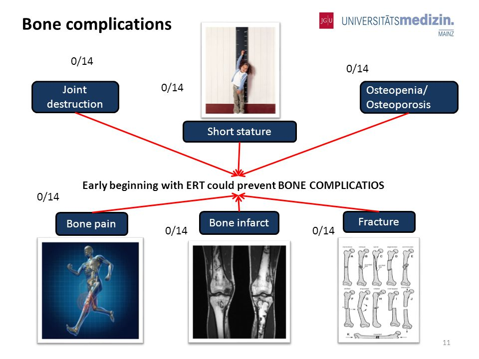 Joint destruction Fracture Bone pain Short stature Osteopenia/ Osteoporosis Bone infarct Early beginning with ERT could prevent BONE COMPLICATIOS 11 Bone complications 0/14