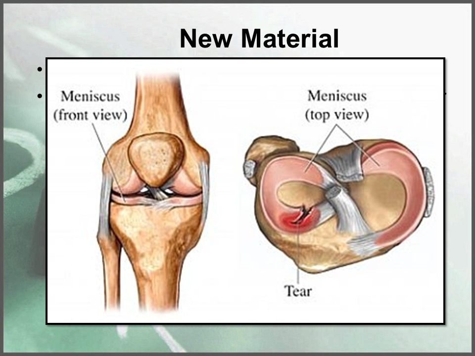 New Material Cartilage is the soft cushion between bones Cartilage does NOT contain blood vessels. It relies on the surrounding tissue for the blood s