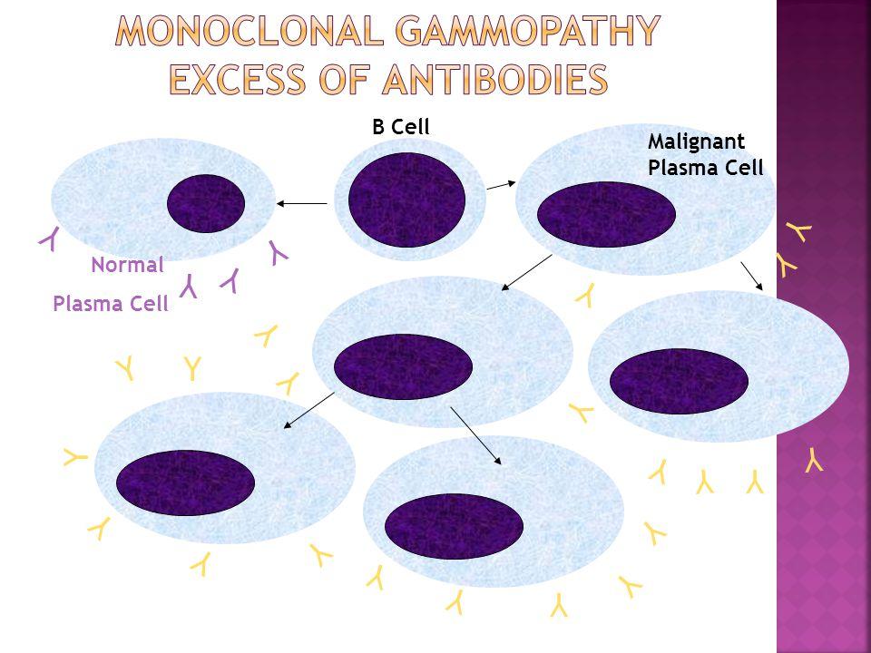Y B Cell Normal Plasma Cell Malignant Plasma Cell Y Y Y Y Y Y Y Y Y Y Y Y Y Y Y Y Y Y Y Y Y Y Y Y Y