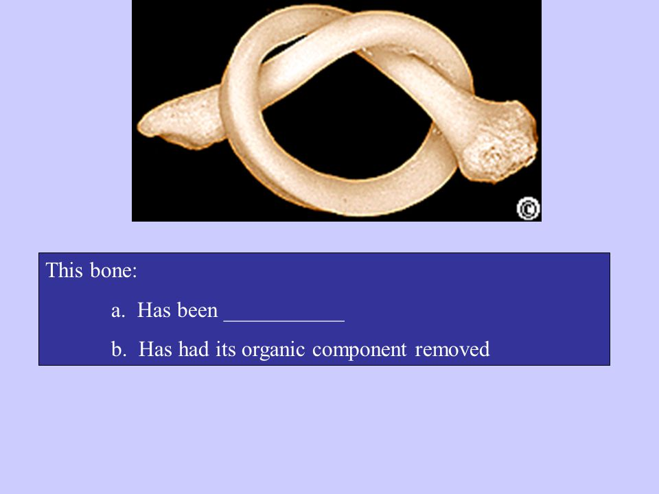 This bone: a. Has been ___________ b. Has had its organic component removed
