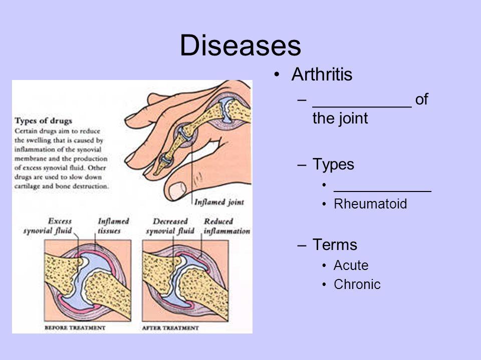 Diseases Arthritis –___________ of the joint –Types _____________ Rheumatoid –Terms Acute Chronic