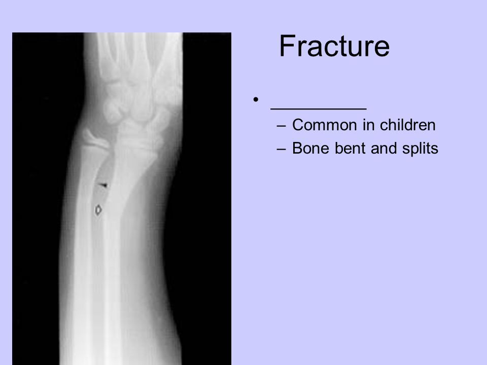 Fracture _________ –Common in children –Bone bent and splits