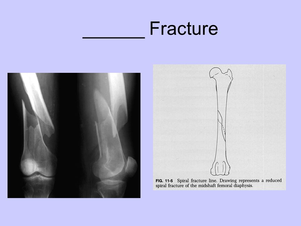 ______ Fracture