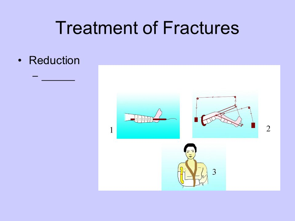 Treatment of Fractures Reduction –______