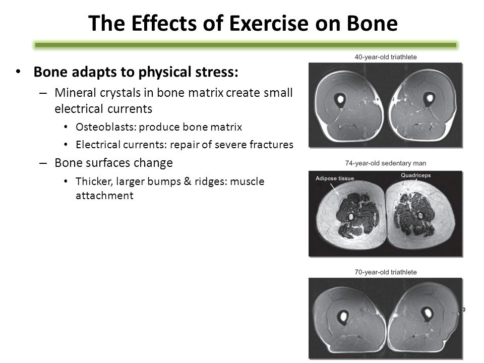 The Effects of Exercise on Bone Bone adapts to physical stress: – Mineral crystals in bone matrix create small electrical currents Osteoblasts: produce bone matrix Electrical currents: repair of severe fractures – Bone surfaces change Thicker, larger bumps & ridges: muscle attachment