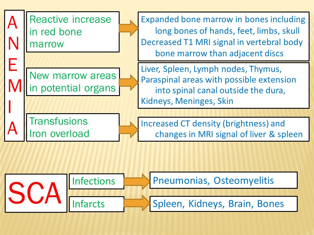 Thalassemia Decreased bone density with coarse trabeculae Wide medullary cavity with thin cortex Thalassemia Decreased bone density with coarse trabeculae Wide medullary cavity with thin cortex Normal for comparison