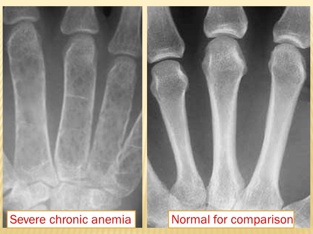 Georgiades C S et al.AJR 2002;179:1239-1243 25-year-old man with β-thalassemia.