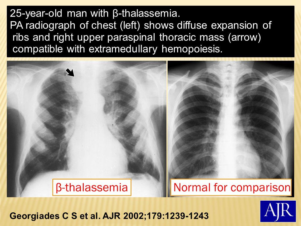 Georgiades C S et al.AJR 2002;179:1239-1243 51-year-old woman with myelofibrosis.