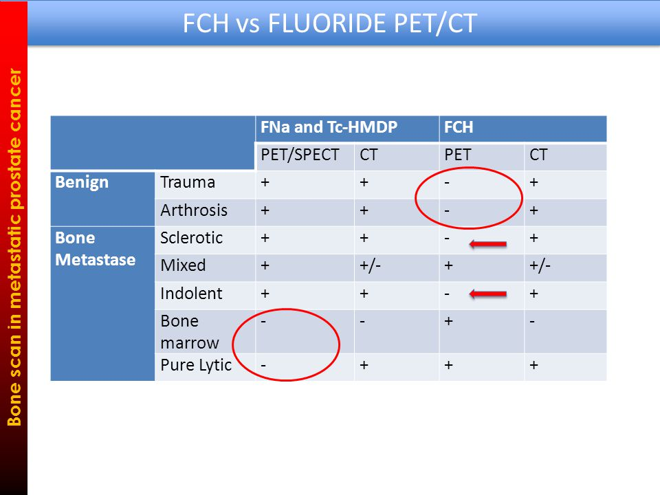 FCH vs FLUORIDE PET/CT Bone scan in metastatic prostate cancer FNa and Tc-HMDPFCH PET/SPECTCTPETCT BenignTrauma++-+ Arthrosis++-+ Bone Metastase Sclerotic++-+ Mixed++/-+ Indolent++-+ Bone marrow --+- Pure Lytic-+++