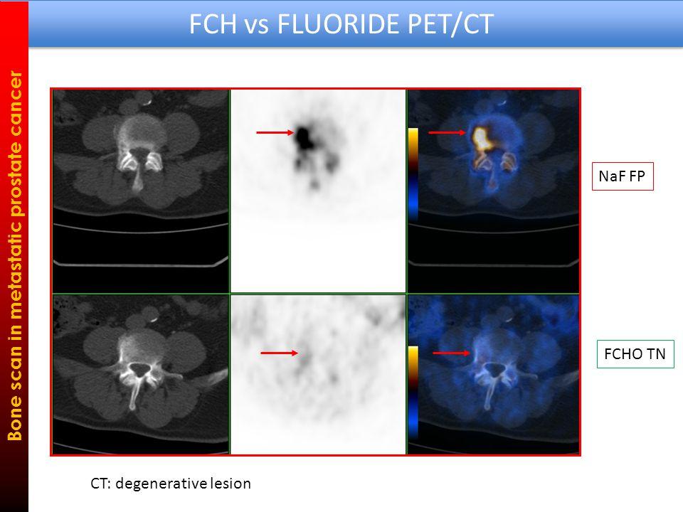 FCH vs FLUORIDE PET/CT Bone scan in metastatic prostate cancer FCHO - NaF + CT: densely sclerotic lesion