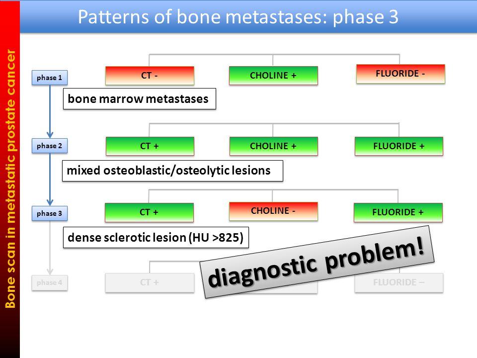Patterns of bone metastases: phase 3 Bone scan in metastatic prostate cancer HU 1350 HU 550 FLUORIDE + FCH - with increasing HU – FCH becomes NEGATIVE