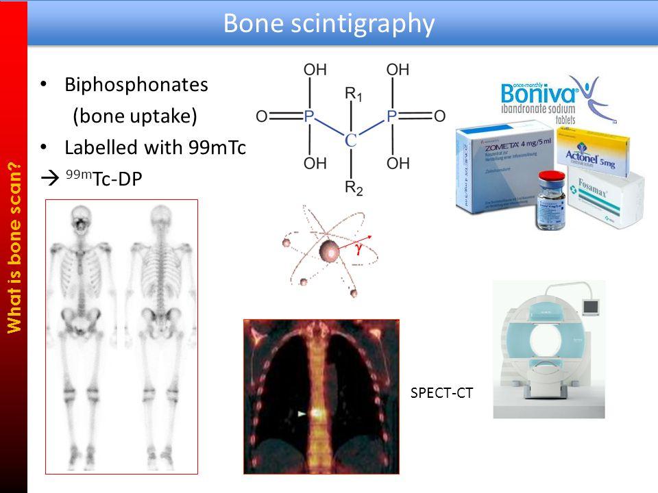 18 Fluorine  18 F-NaF Bone PET What is bone scan.